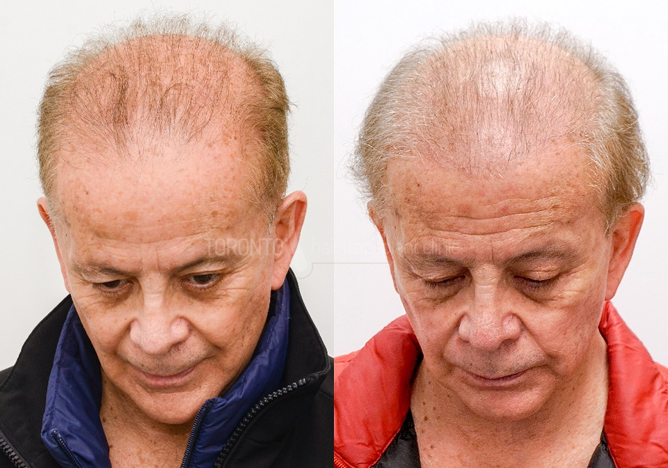 FUE-Hair-Transplant-Before-After-P9 (1)