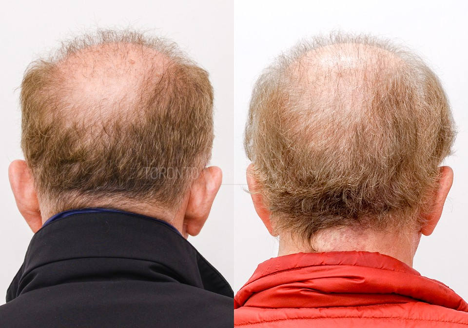 FUE-Hair-Transplant-Before-After-P9 (2)