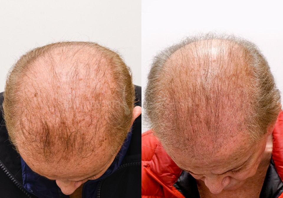 FUE-Hair-Transplant-Before-After-P9 (3)