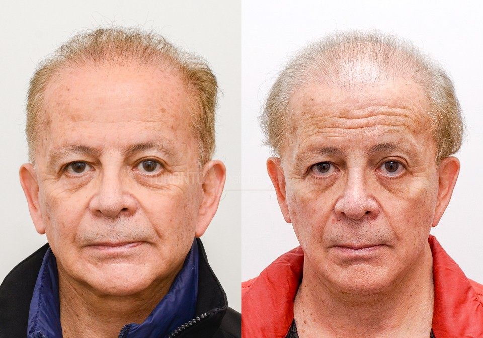 FUE-Hair-Transplant-Before-After-P9 (4)