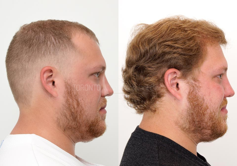 FUE-Hair-Transplant-Before-After-P21 (1)