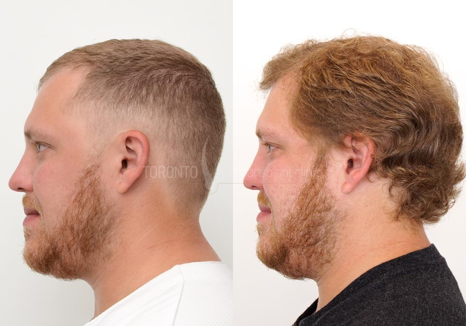 FUE-Hair-Transplant-Before-After-P21 (2)