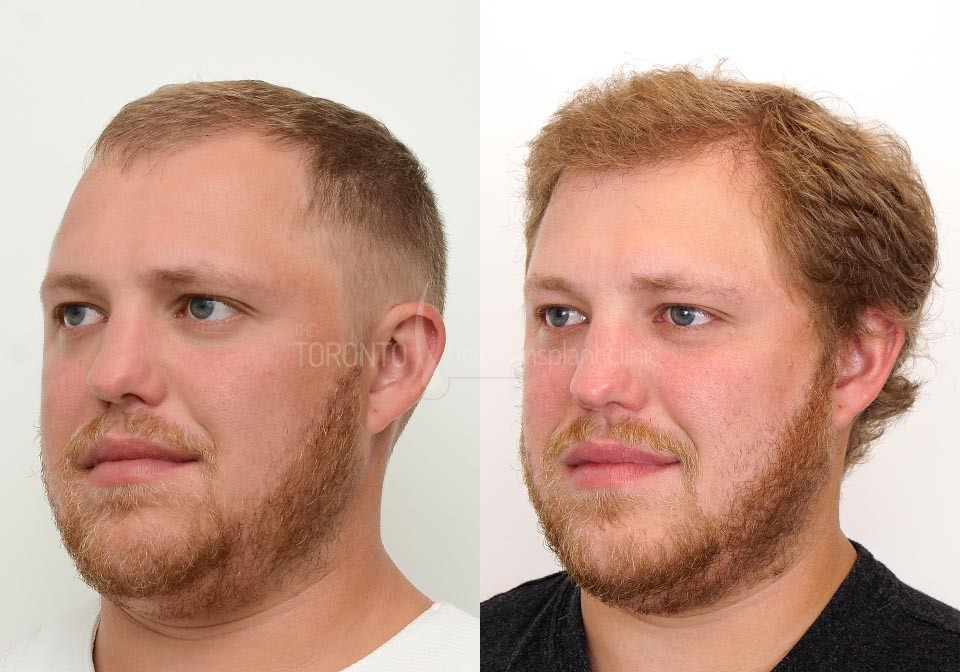 FUE-Hair-Transplant-Before-After-P21 (3)