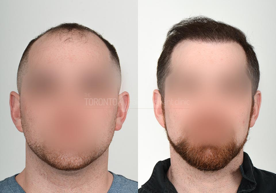 FUE-Hair-Transplant-Before-After-P21 (4)