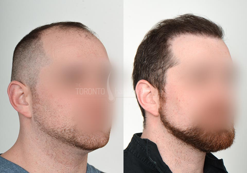 FUE-Hair-Transplant-Before-After-P21 (5)