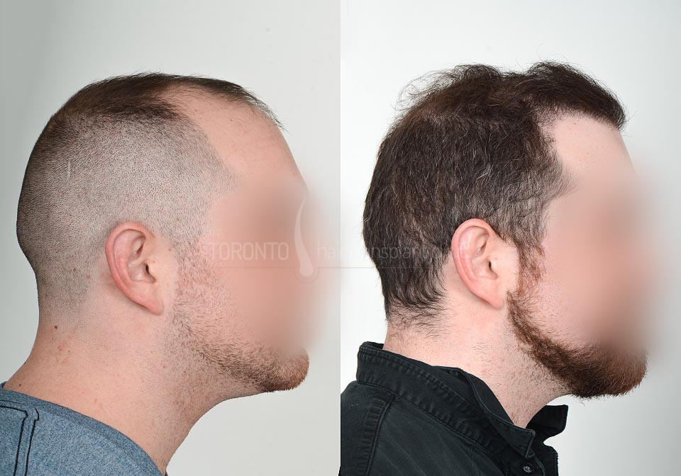 FUE-Hair-Transplant-Before-After-P21 (6)