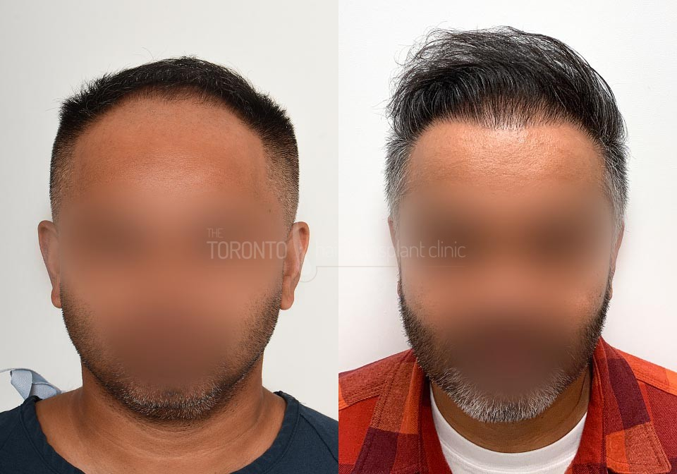 FUE-Hair-Transplant-Before-After-P22 (1)