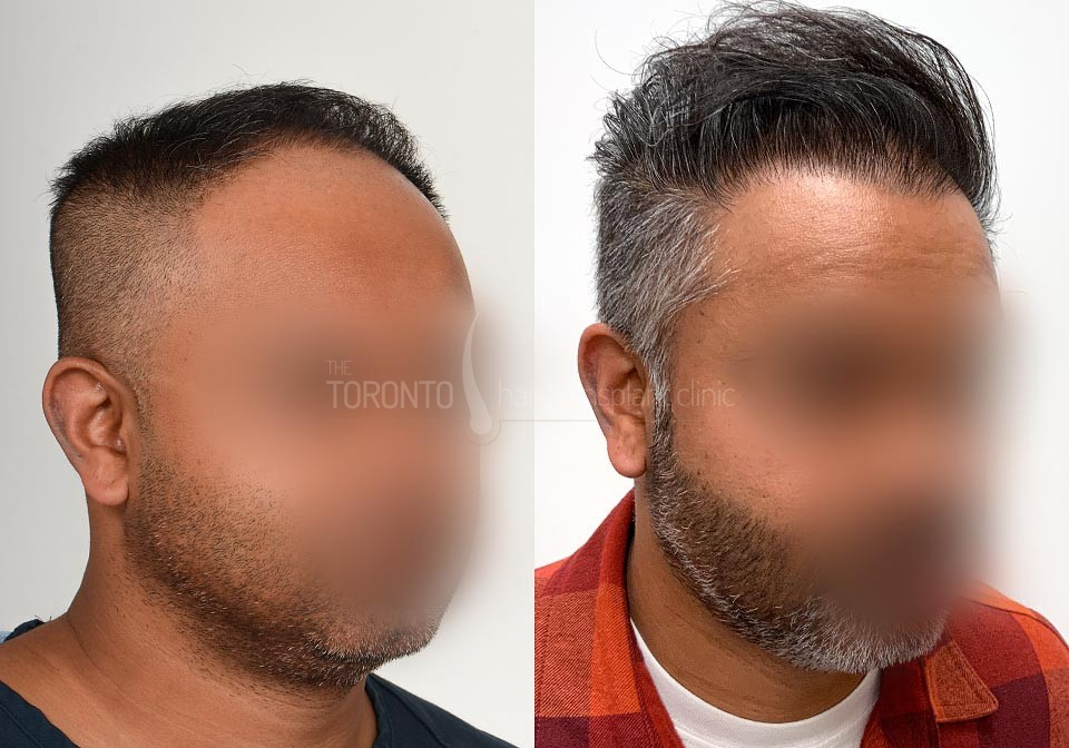 FUE-Hair-Transplant-Before-After-P22 (2)