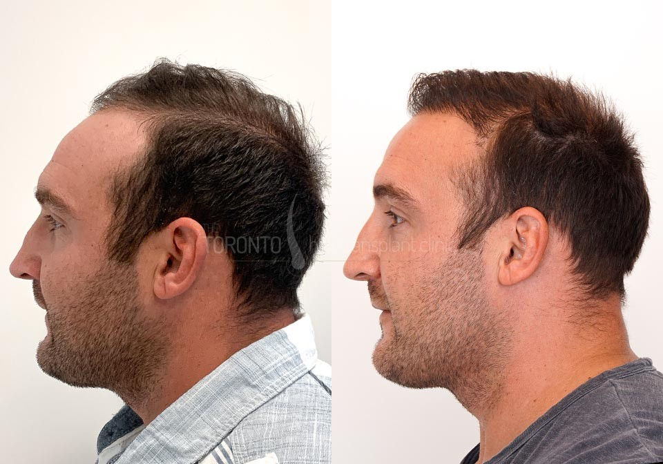 FUE-Hair-Transplant-Before-After-P22 (3)
