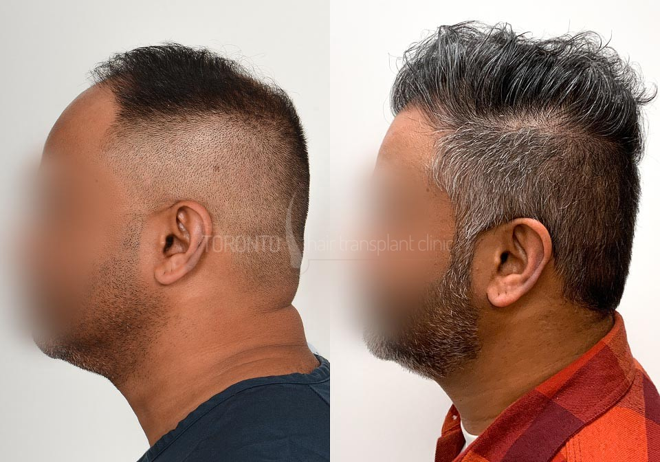 FUE-Hair-Transplant-Before-After-P22 (4)