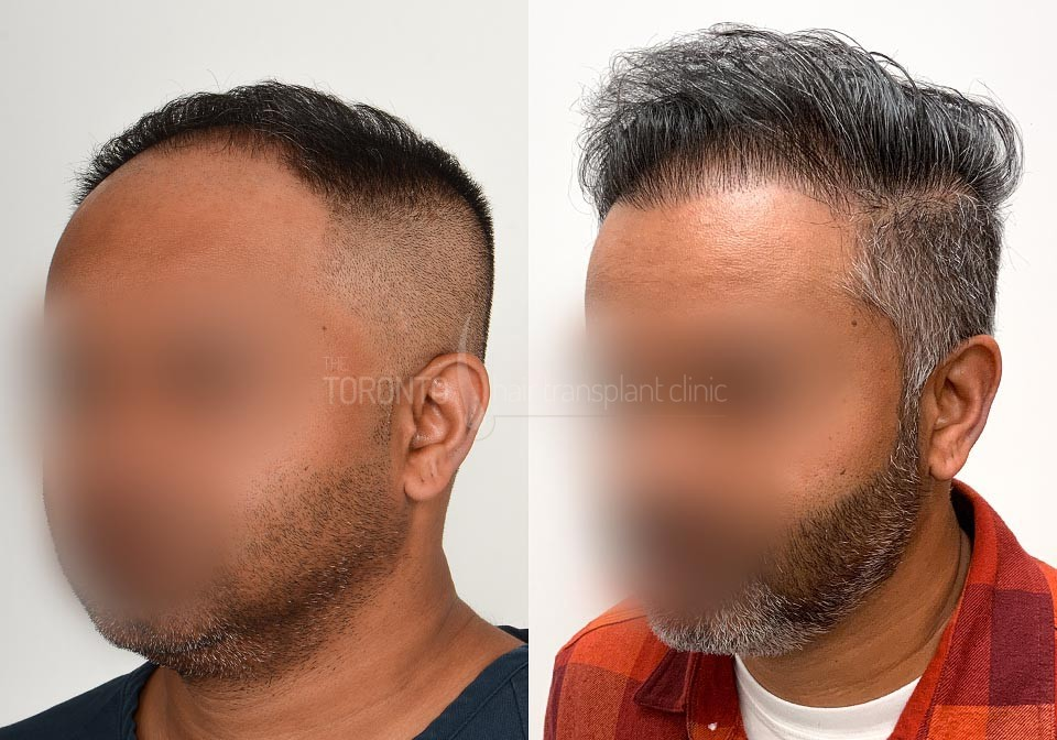 FUE-Hair-Transplant-Before-After-P22 (5)