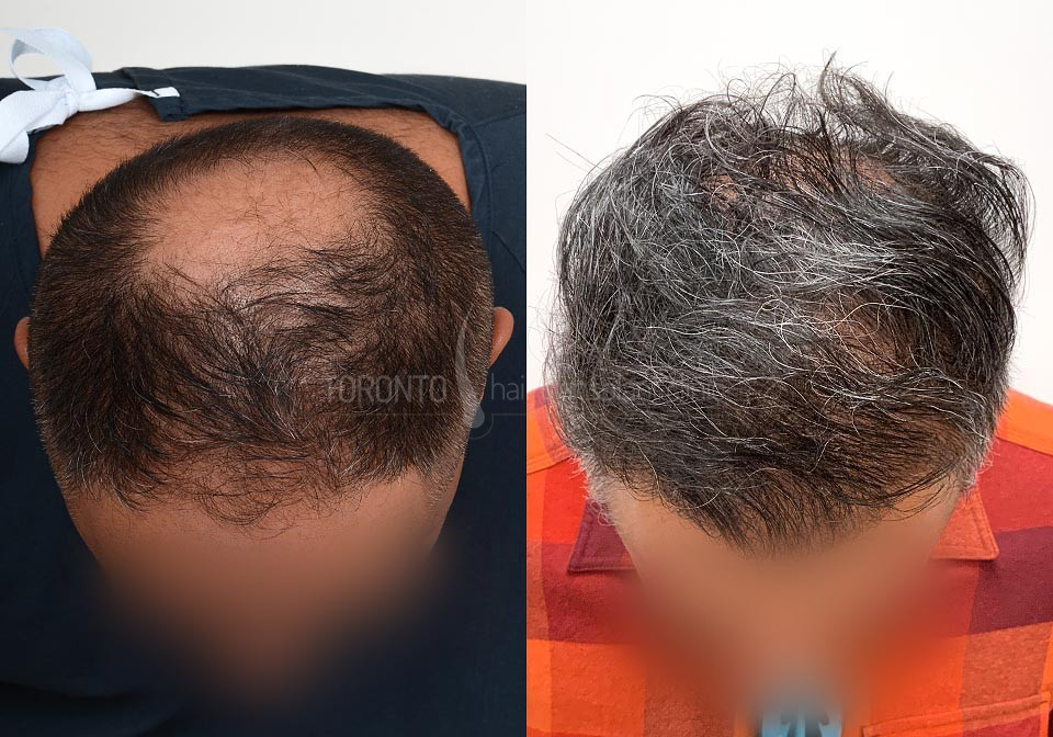 FUE-Hair-Transplant-Before-After-P22 (6)
