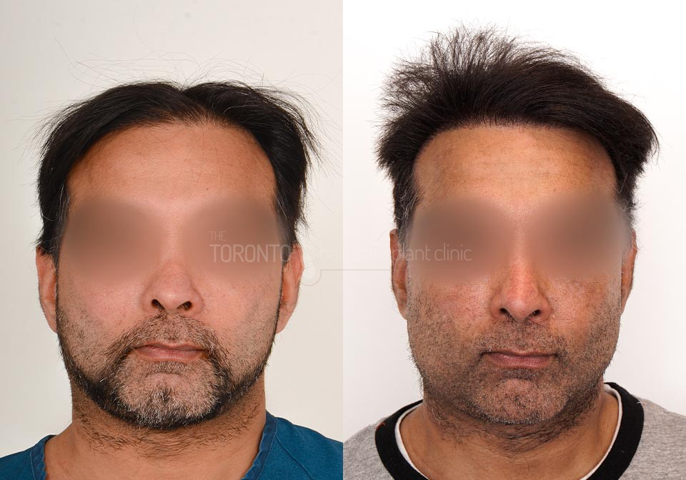 FUE-Hair-Transplant-Before-After-P23 (1)