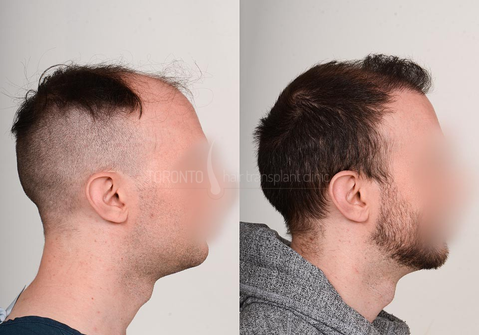FUE-Hair-Transplant-Before-After-P23 (2)