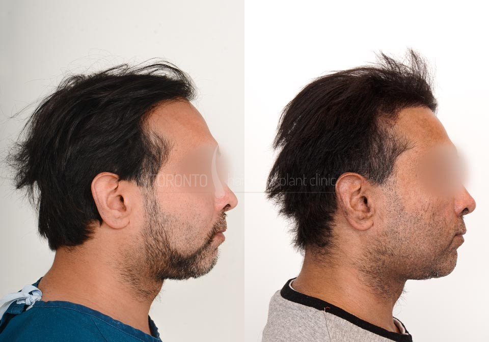 FUE-Hair-Transplant-Before-After-P23 (3)
