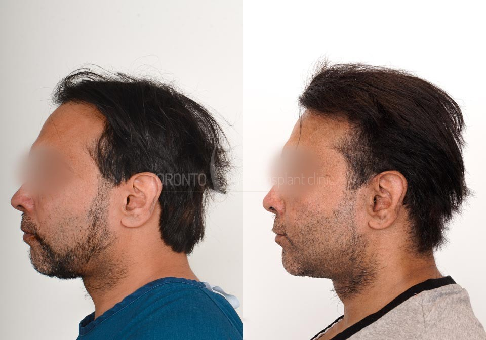 FUE-Hair-Transplant-Before-After-P23 (4)