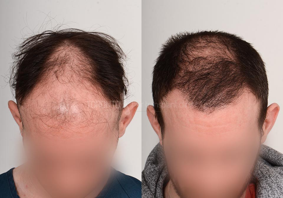 FUE-Hair-Transplant-Before-After-P23 (5)