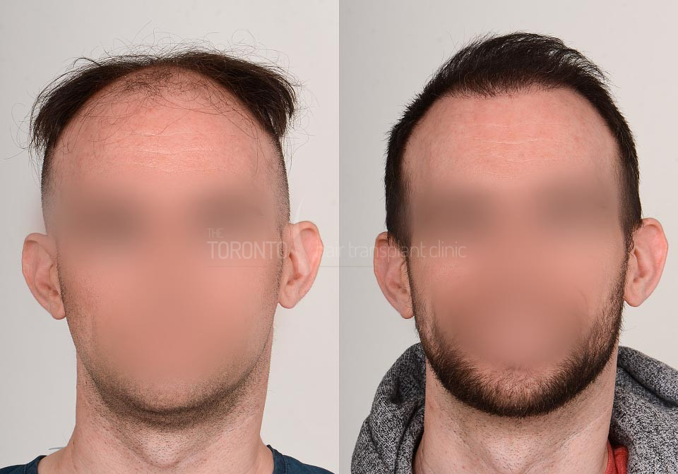 FUE-Hair-Transplant-Before-After-P23 (6)