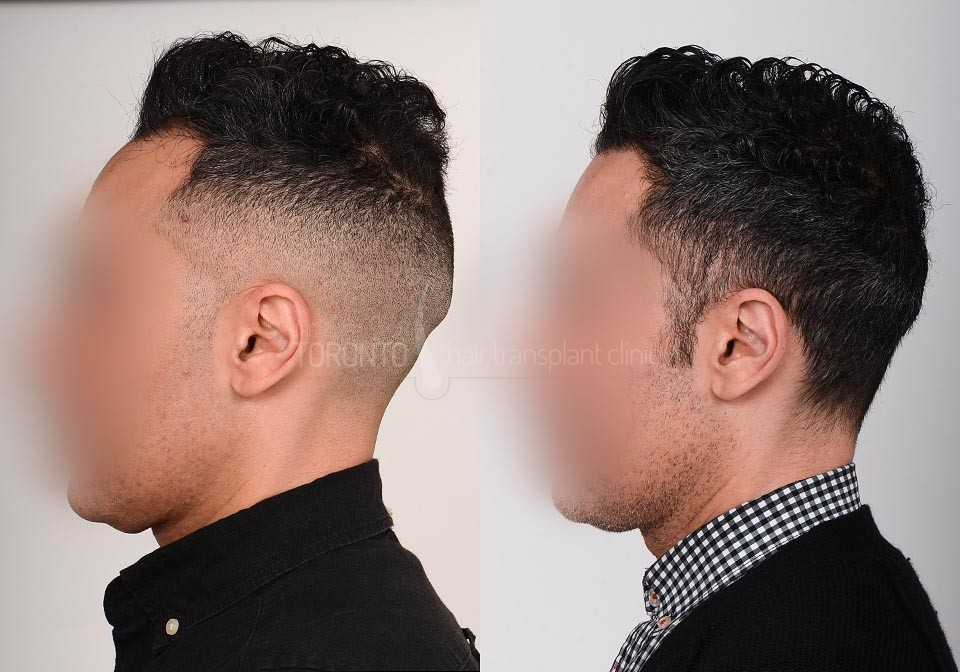 FUE-Hair-Transplant-Before-After-P24 (1)