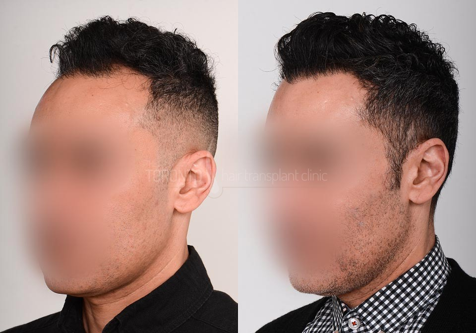FUE-Hair-Transplant-Before-After-P24 (2)
