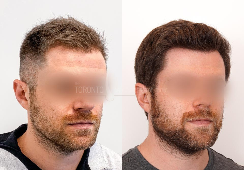 FUE-Hair-Transplant-Before-After-P24 (3)