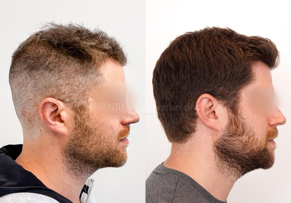 FUE-Hair-Transplant-Before-After-P24 (4)