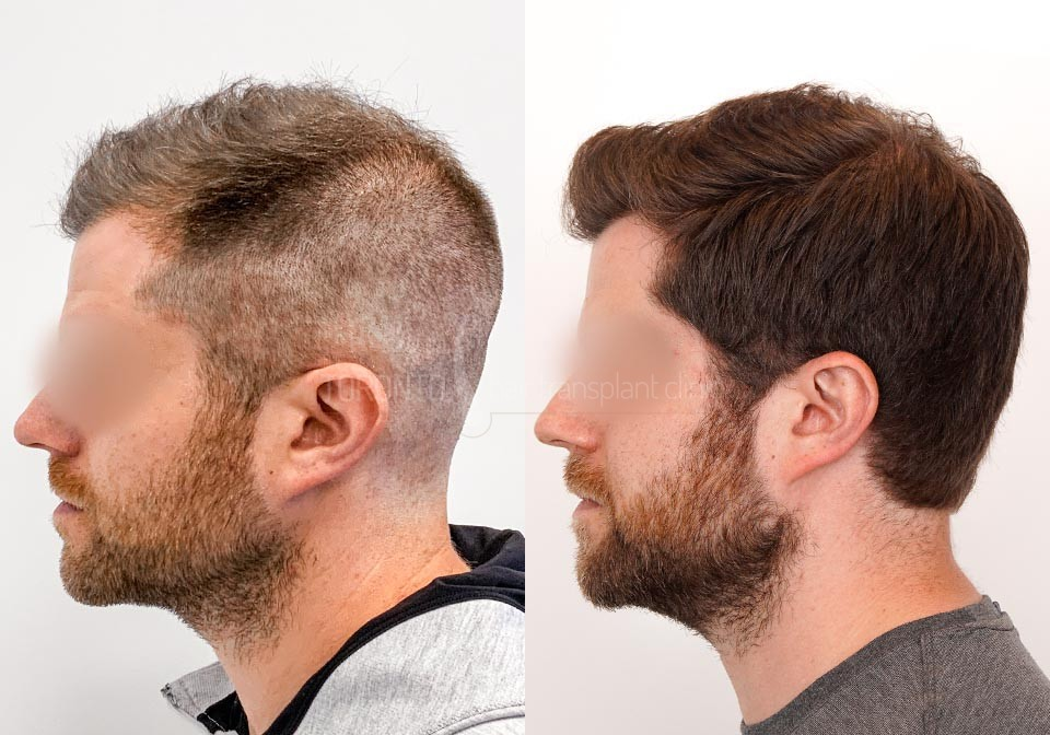 FUE-Hair-Transplant-Before-After-P24 (5)