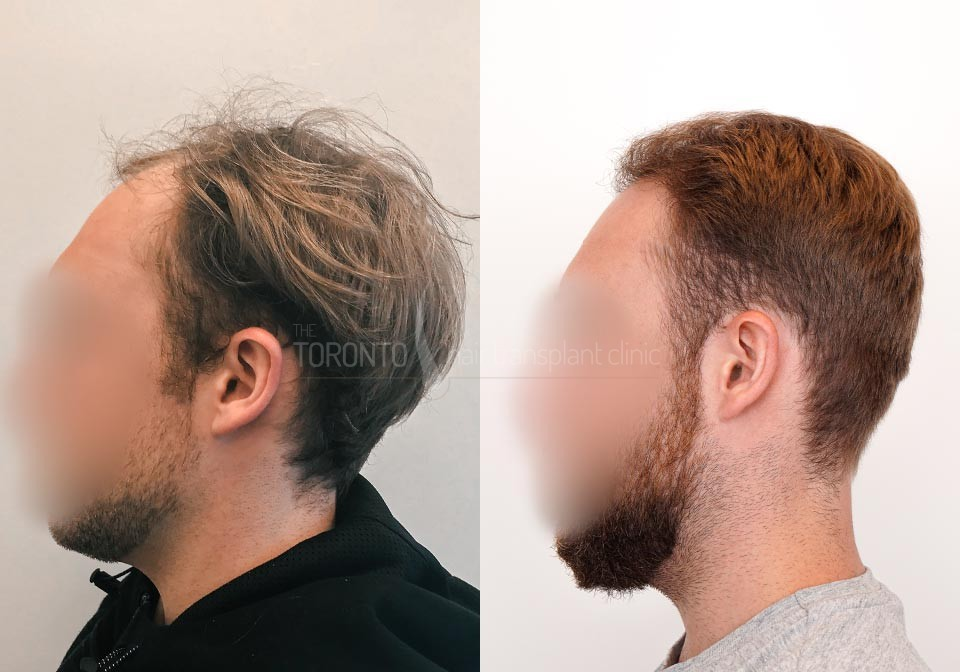 FUE-Hair-Transplant-Before-After-P25 (1)