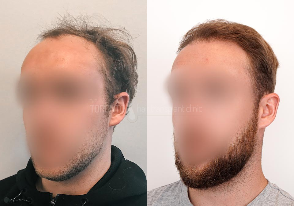 FUE-Hair-Transplant-Before-After-P25 (2)