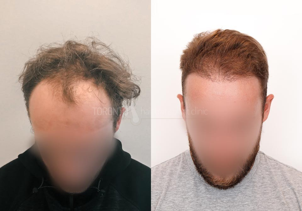 FUE-Hair-Transplant-Before-After-P25 (3)