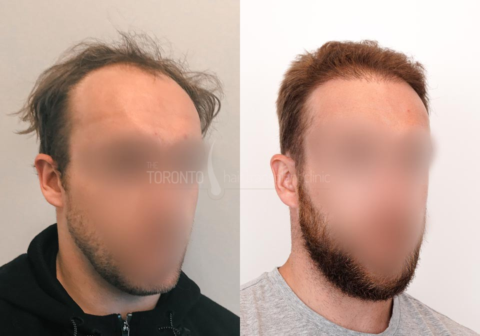 FUE-Hair-Transplant-Before-After-P25 (5)