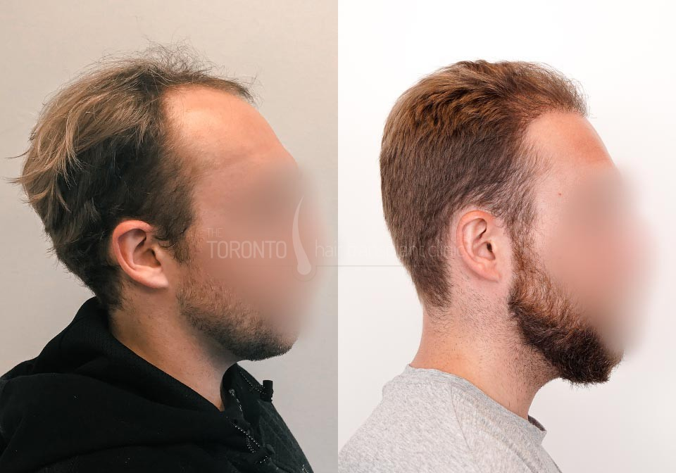 FUE-Hair-Transplant-Before-After-P25 (6)