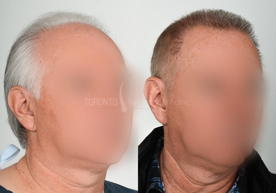 FUE-Hair-Transplant-Before-After-P26 (1)