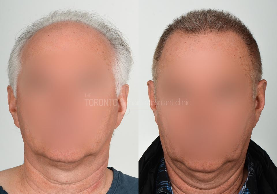 FUE-Hair-Transplant-Before-After-P26 (2)